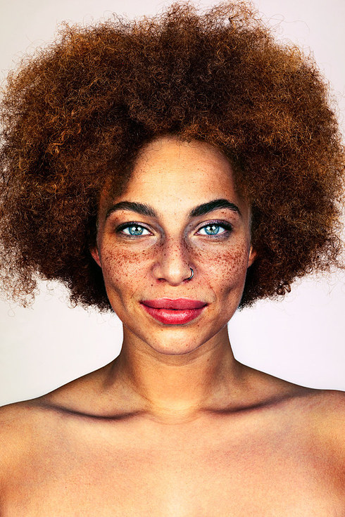why do we have freckles on our face frolicious natural hair afro haare pflegen. Black Bedroom Furniture Sets. Home Design Ideas