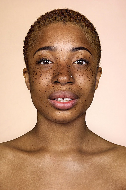 Is There A Natural Way To Get Freckles