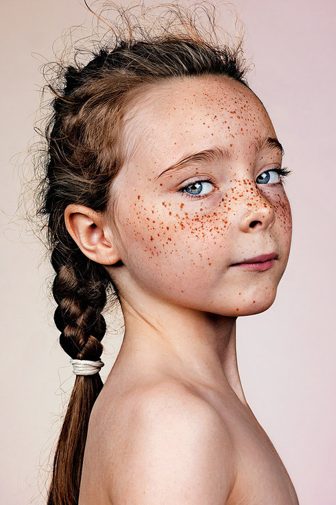 Why Do We Have Freckles On Our Face Frolicious Natural Hair